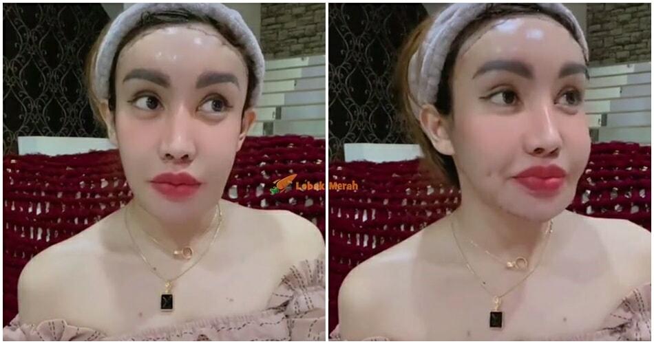 Safiey Illias Bedah Wajah Sejak Umur 17 Tahun